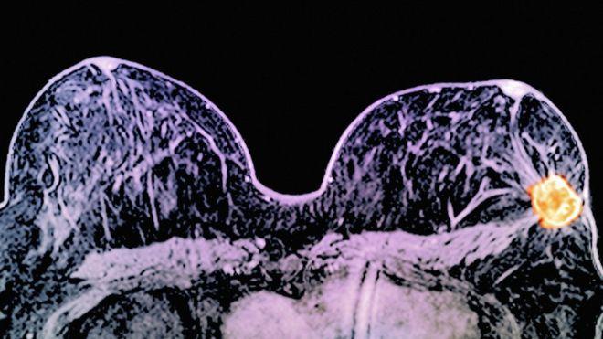 Tumours shrunk 'dramatically' in 11 days