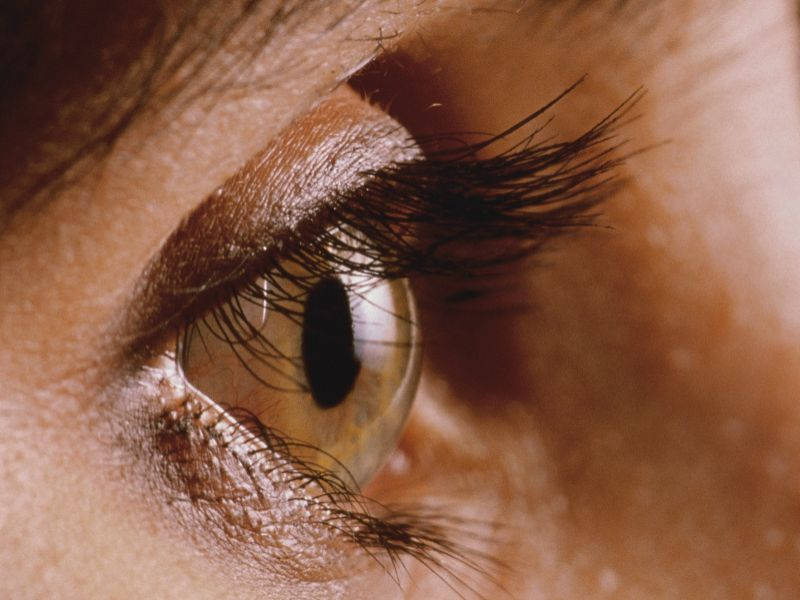 Allergy drug might also treat MS-linked eye damage