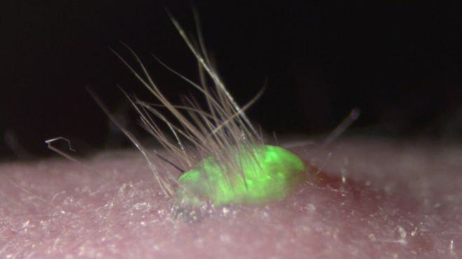 Promising lab-grown skin sprouts hair and grows glands