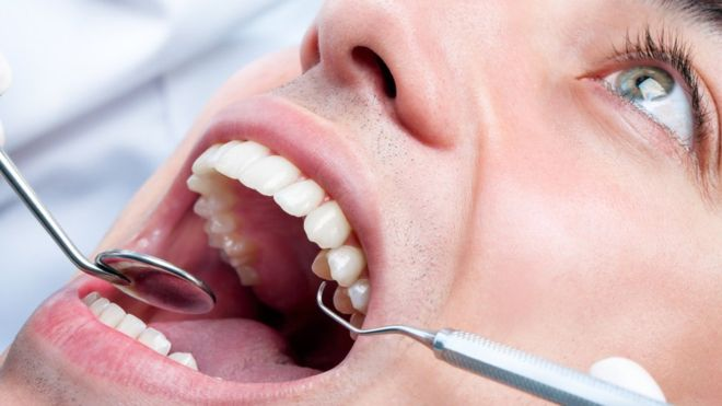 Teeth whitening: Call for action on 'rogue' beauticians