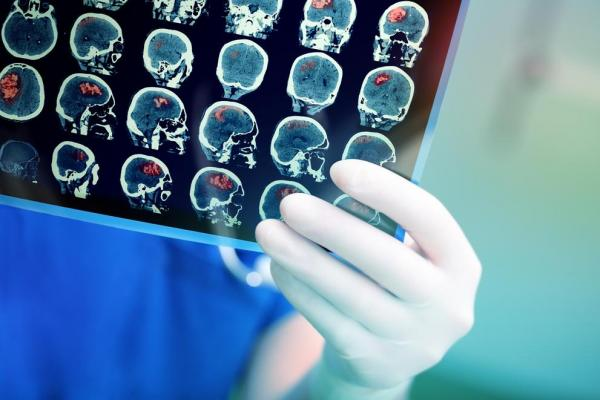 Study: Brain scans may help detect autism